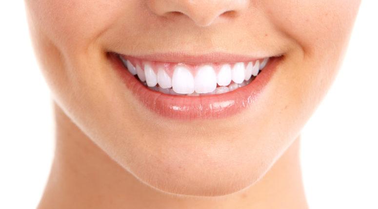Tratamientos de contorneado dental