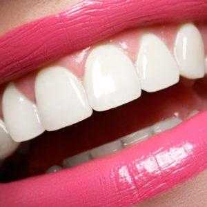 ¿Dientes amarillos? Cómo lucir una sonrisa más blanca.