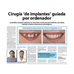 Cirugía 'de implantes' guiada por ordenador